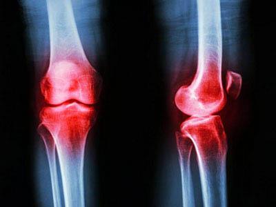 新发现:有望治疗关节炎的新方法