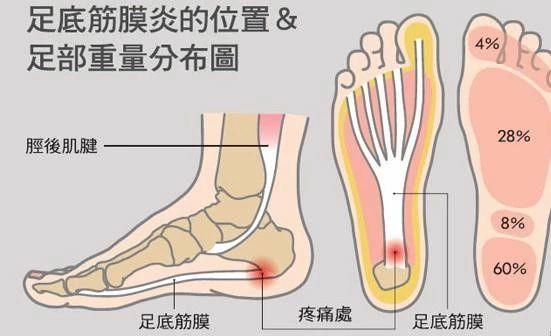 上海华山医院戈允申:跑步后脚底疼?当心足底筋膜炎!!!