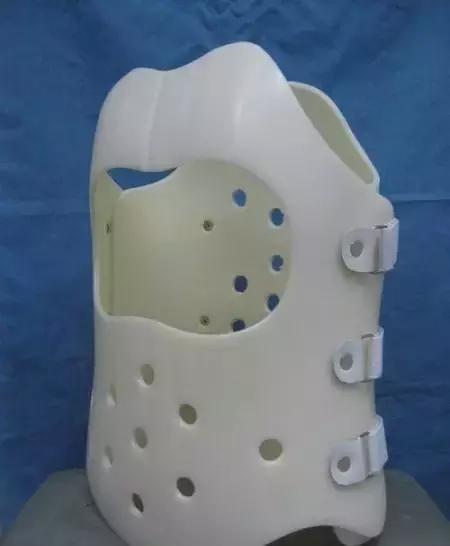 脊柱侧弯矫形术后戴支具的作用和意义
