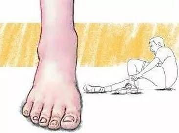 踝关节扭伤后处理不当会产生哪些不良后果