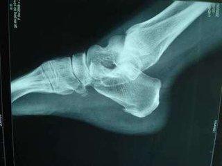 什么是跟骨骨刺 跟痛症?
