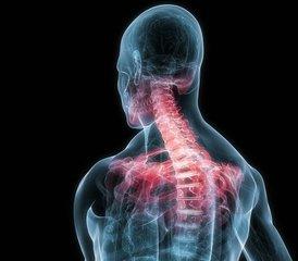 平衡美学——脊柱矫形的艺术