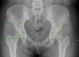关节镜技术在髋关节疾病中的应用