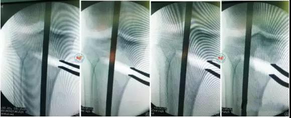 胫骨高位截骨术治疗膝关节骨关节炎的现状