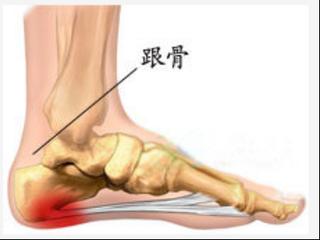 脚跟骨骨刺的症状表现有哪些