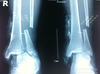腓骨截骨下胫腓联合融合治疗陈旧性踝关节骨折畸形愈合
