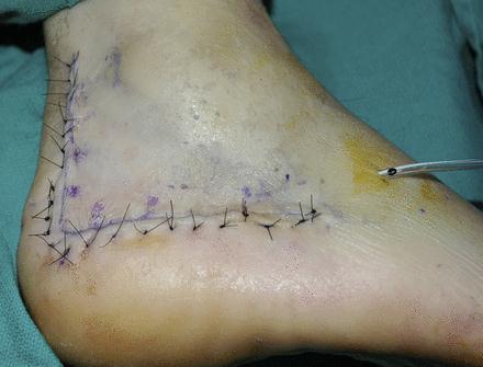 跟骨骨折内固定术如何避免皮肤坏死