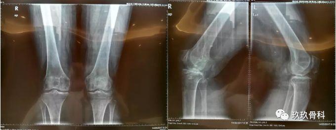 膝关节骨性关节炎,其实可以上下楼!