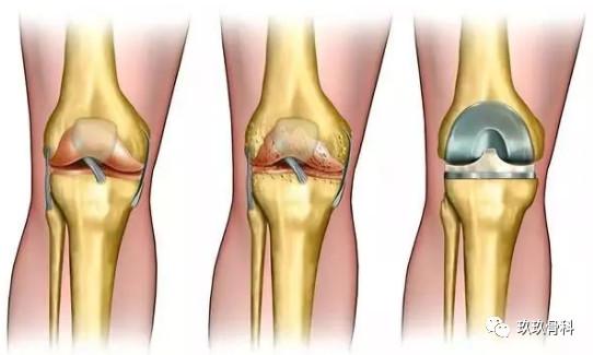人工膝关节置换术后注意事项