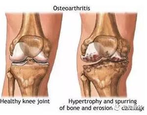 一文全解丨膝关节炎与膝关节置换