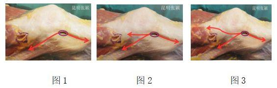 张颖:髌骨脱位手术治疗方案汇总