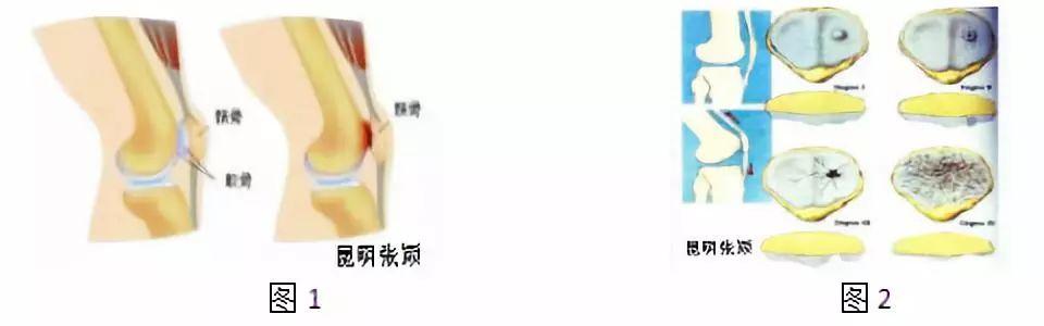 髌骨软化症与髌股关节炎的诊治