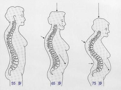 重新认识胸腰段脊柱骨折的诊断和治疗