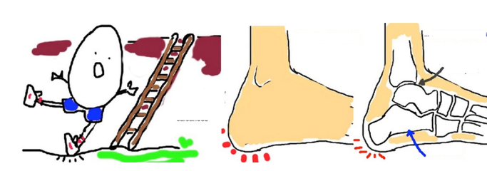 微创钢板螺钉治疗粉碎性跟骨骨折的临床疗效