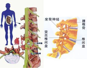 TESSYS-FULLSEE椎间孔镜技术治疗腰椎间盘突出症(全内镜)