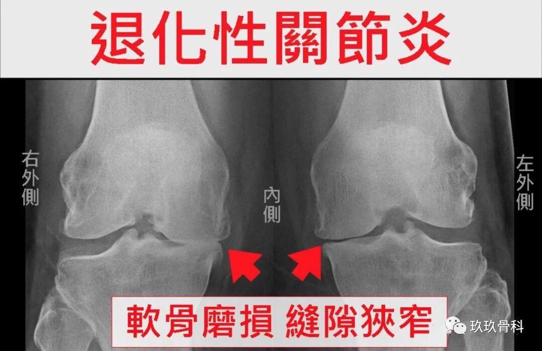 膝退化性关节炎怎么办?这7个关键动作舒缓疼痛!