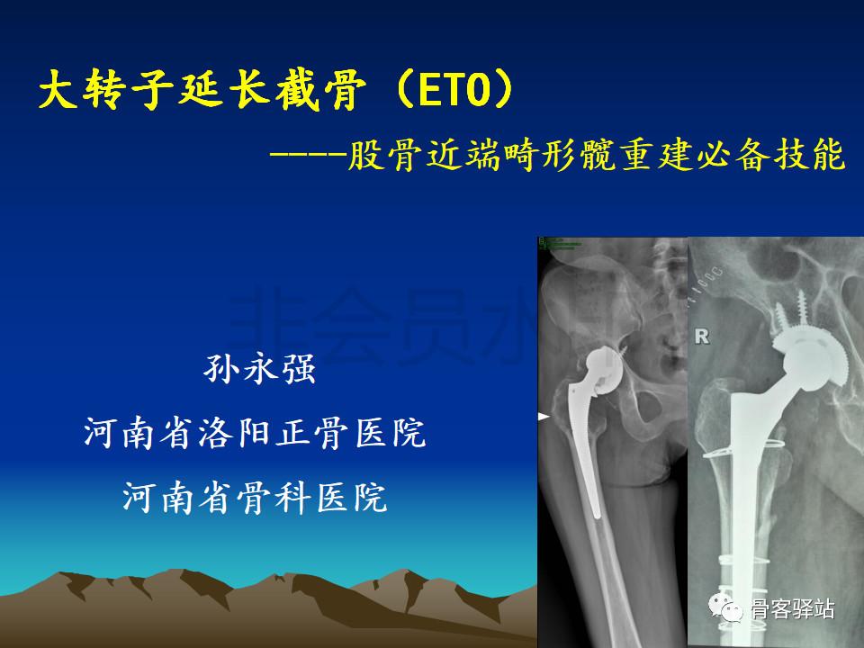 大转子延长截骨(ETO)—股骨近端畸形髋重建必备技能