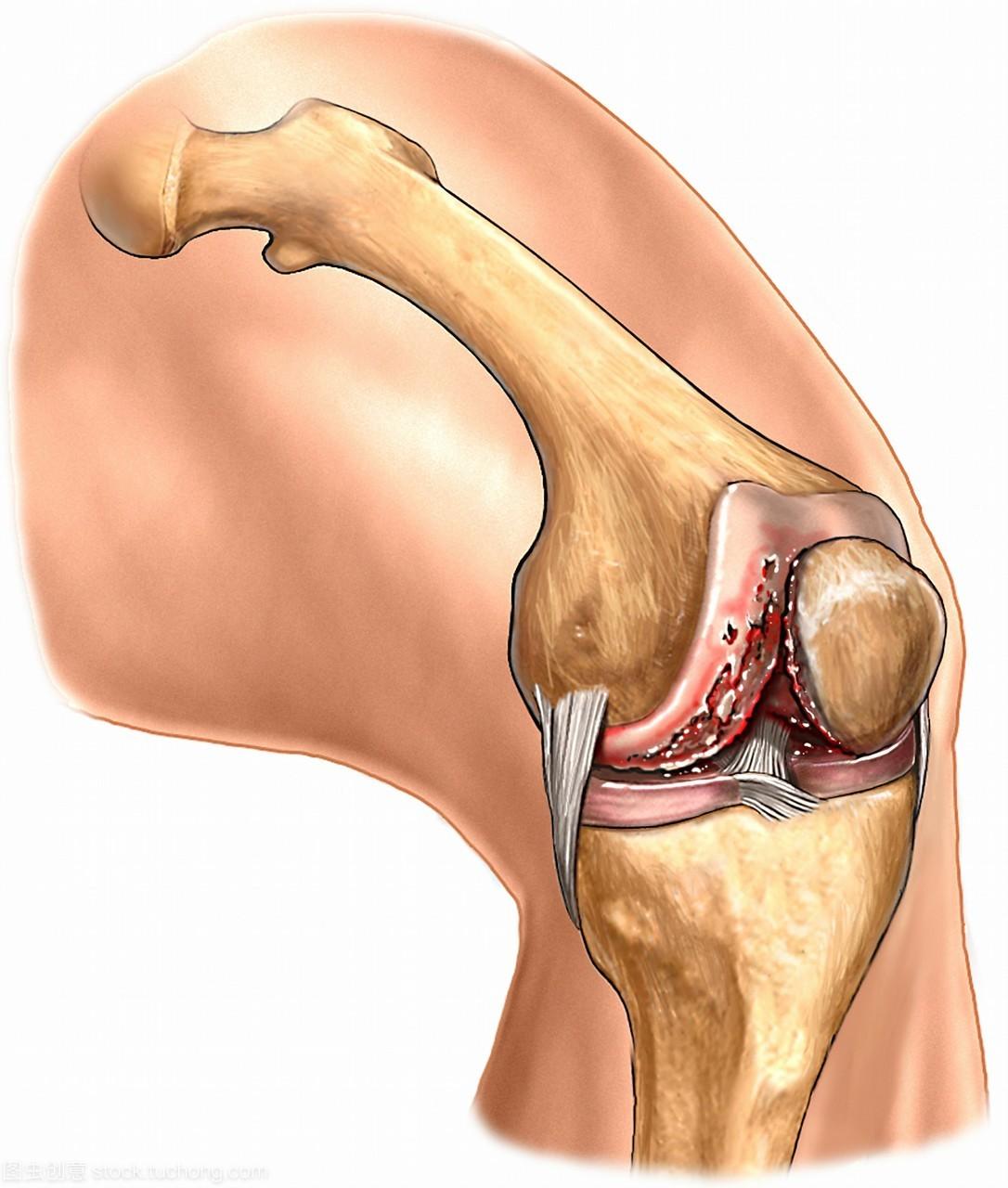 膝盖使用说明书