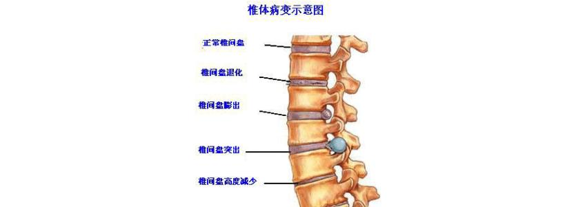 基于MRI上椎间盘突出程度预测腰椎间盘突出后重吸收的研究进展