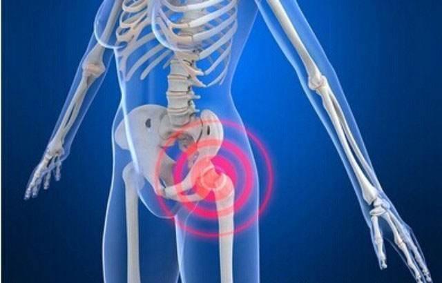 四肢大关节旁滑囊与滑囊病变的影像诊断