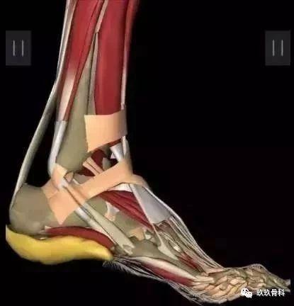 常见足跟痛的诊断与治疗要点