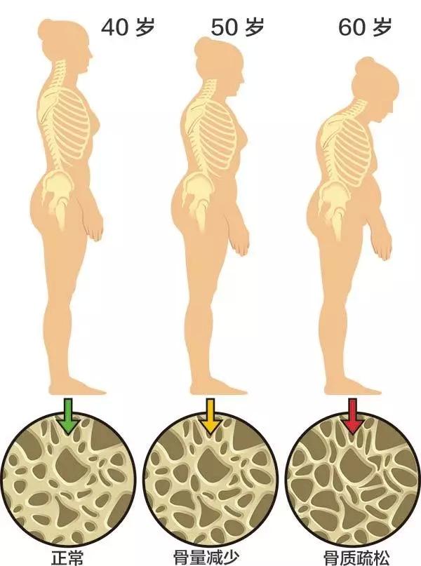 关于预防骨质疏松的 13 个常见问题