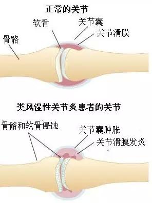 如何预防关节炎?