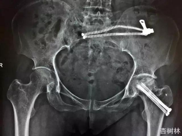 股骨颈骨折治疗的关键—北京协和医院钱文伟教授