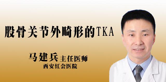 <b>股骨关节外畸形的TKA</b>