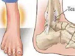 【科普】脚踝扭伤不用愁,5步就能完全康复