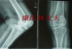 髌骨骨不连的治疗其实很简单--典型病例
