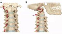 9个病例让你明白颈椎病为何会引起眩晕?