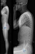钱邦平:脊柱畸形患者脊柱-骨盆矢状面序列动态分析的临床意义